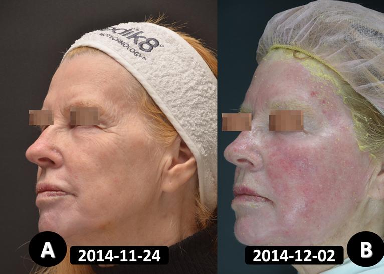 Pav.3 Pacientė 8-ą parą po giliojo cheminio pilingo procedūros kaktos ir skruostų odoje: odos raukšlėtumas išnykęs, matomas odos paraudimas (eritema).