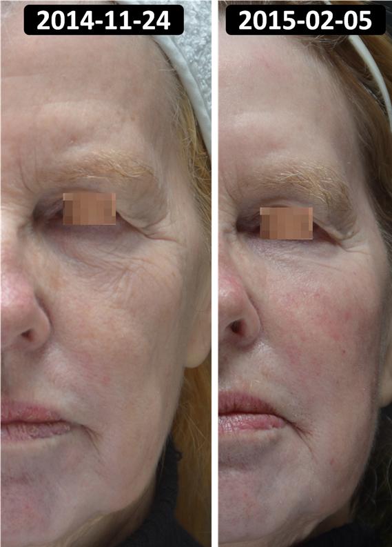 """Pav. 5 Pacientė pasibaigus poprocedūrinei reabilitacijai,, praėjus po giliojo cheminio pilingo procedūros 73 dienoms: raukšlėtumas išnykęs, akivaizdus odos """"patempimo"""" reiškinys."""