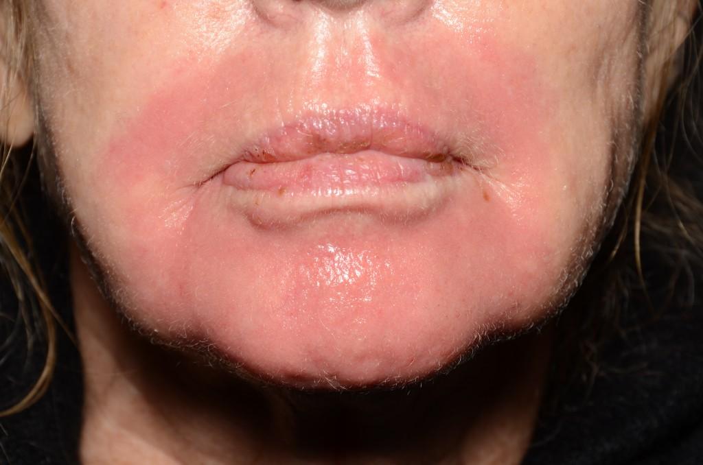 """Pav. 10 Lokalus """"lūpos-smakras"""", gilusis cheminis pilingas fenoliu. Aštunta para po giliojo cheminio pilingo fenoliu procedūros. Veido oda nuėmus miltelinę kaukę: raukšlėtumas išnykęs, ryškus patempimo (""""liftingo"""" – angl.k.) efektas, oda paraudusi"""