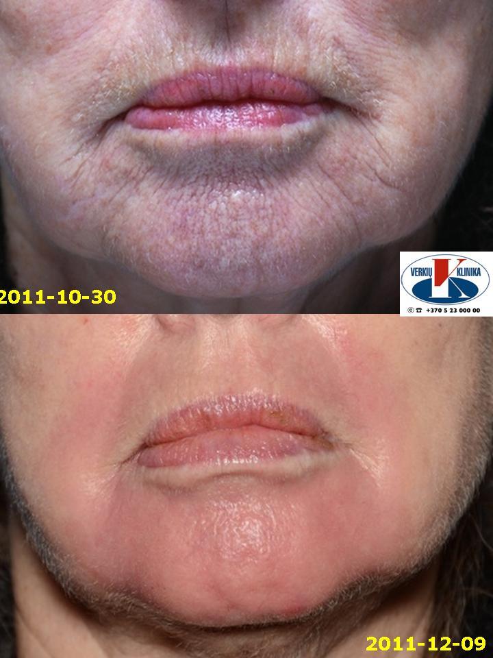 """Pav. 11 Lokalus """"lūpos-smakras"""", gilusis cheminis pilingas fenoliu. Būklės """"iki ir po"""" procedūros palyginimas: raukšlėtumas išnykęs, paraudimas mažesnis (žr. pav.9), ryškus odos """"patempimo"""" efektas"""