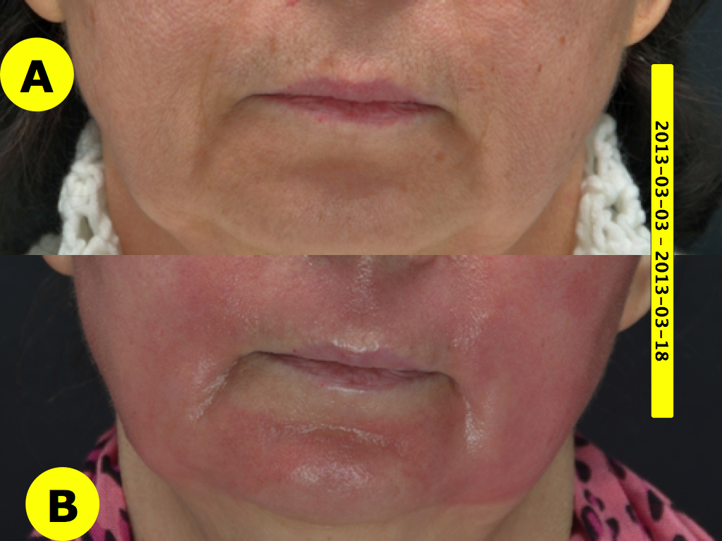 """Pav. 17 Viso veido gilusis cheminis pilingas fenoliu dėl raukšlėtumo. Skruostų, viršutinės lūpos ir smakro odos būklė """"iki ir po"""" procedūros"""