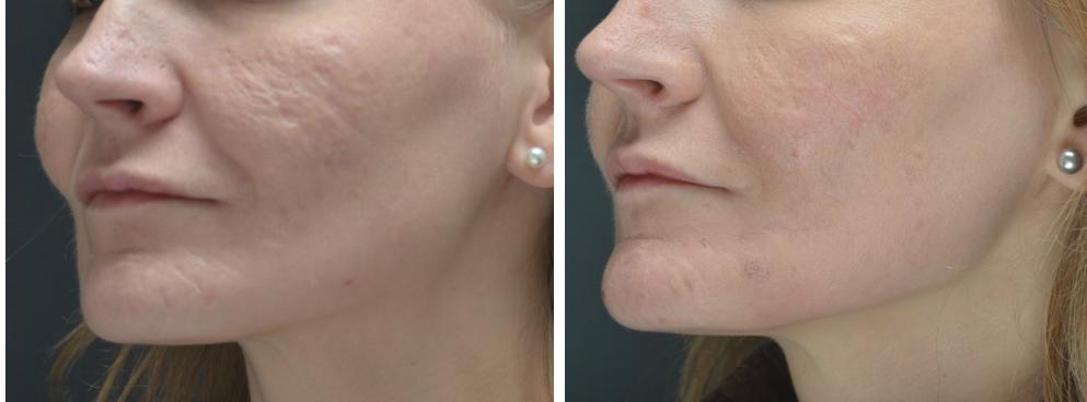"""Pav. 21 Viso veido gilusis cheminis pilingas fenoliu dėl acne randų. Kairio skruosto būklė """"iki ir po"""" procedūros"""