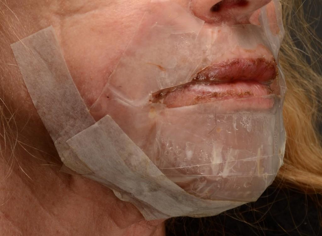 """Pav. 6 Lokalus """"lūpos-smakras"""", gilusis cheminis pilingas fenoliu. Pleistro kaukės vaizdas po 24 val., prieš nuėmimą"""