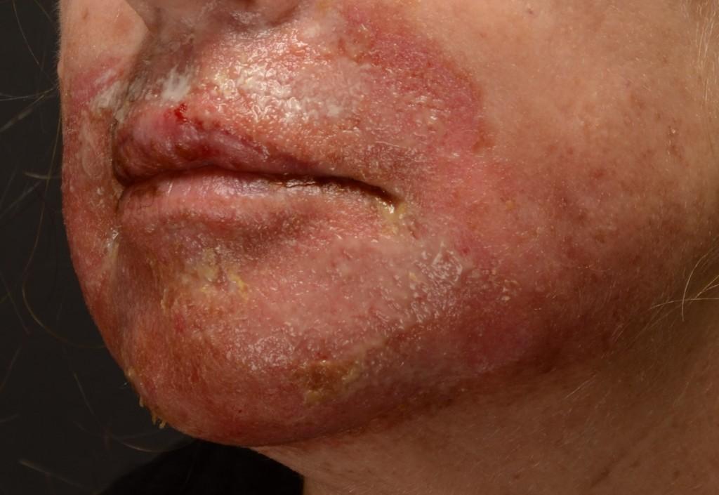 """Pav. 7 Lokalus """"lūpos-smakras"""", gilusis cheminis pilingas fenoliu. Nuėmus okliuzinę kaukę, matoma patinusi, paraudusi, maceruota oda, yra nudegiminių pūslių, viršutinėje lūpoje - """"coagulum""""- suskystėjusi oda"""