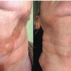 Baltmės (Vitiligo) gydymas fenoliu (karbolio rūgštimi)