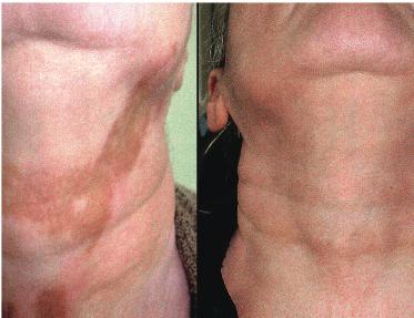 Repigmentacija pasiekta 88% gydant fenolio pilngais po 8 mėnesių: