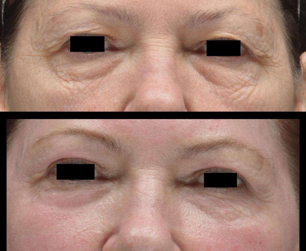 Pav 2. Pacientė po cheminės blefaroplastikos praėjus 2 mėn. Vokų raukšlėtumo sumažėjimas, išnykęs patinimas, paraudimas. Viršutiniųvokų odos perteklius – galima kombinuoti su chirurgine viršutinių vokų blefaroplastika, optimalus laiko intervalas tarp procedūrų 2-3 mėn.