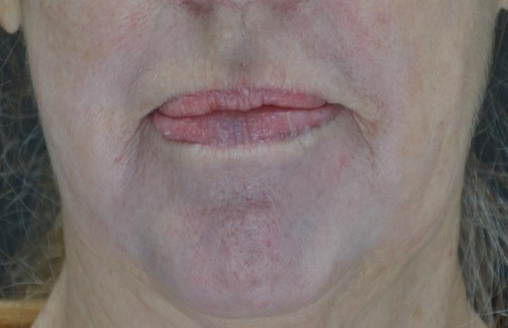 """Pav. 12 Lokalus """"lūpos-smakras"""", gilusis cheminis pilingas fenoliu. Vaizdas praėjus dvejiems metams po procedūros – estetinis rezultatas ilgalaikis ir stabilus"""