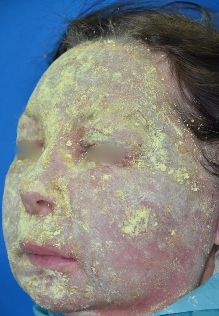 Pav.14 Viso veido gilusis cheminis pilingas fenoliu. Miltelinė antiseptinė bismuto subgalato kaukė, ji nuimama aštuntą parą, tiek laiko pakanka odos epitelizacijai