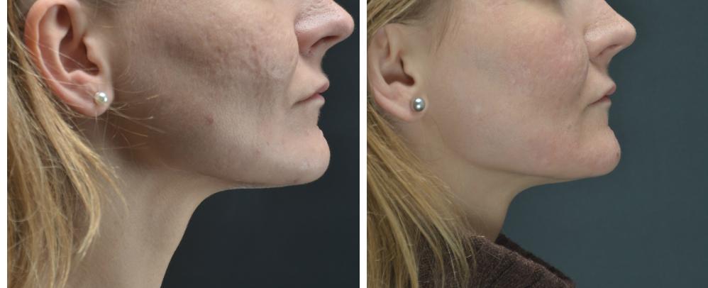 """Pav. 20 Viso veido gilusis cheminis pilingas fenoliu dėl acne randų. Dešinio skruosto būklė """"iki ir po"""" procedūros"""