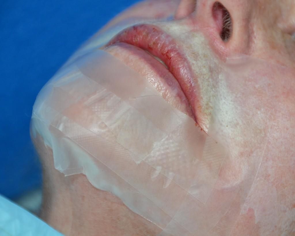 """Pav. 5 Lokalus """"lūpos-smakras"""", gilusis cheminis pilingas fenoliu. Patepus visą anatominę zoną fenolio pilingo mišiniu, pilingo efekto sustiprinimui, užklijuojama okliuzinė, nelaidi orui ir drėgmei okliuzinė kaukė, sudaryta iš atskirų specialaus pleistro juostelių. Kaukė nuimama po 24 val., procedūra neskausminga"""