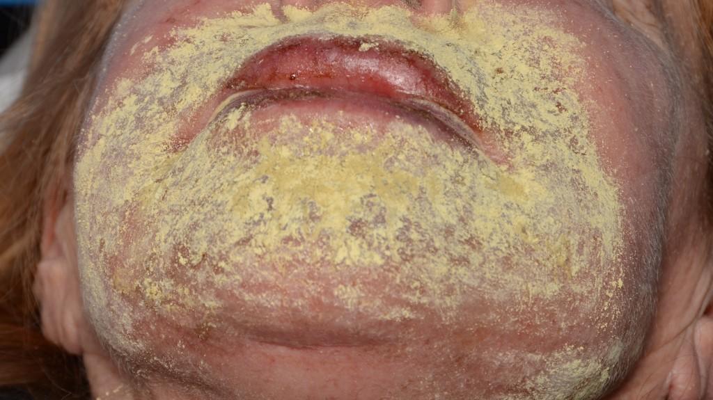 """Pav. 8 Lokalus """"lūpos-smakras"""", gilusis cheminis pilingas fenoliu. Steriliais tamponais nuvalius """"coagulum"""", odos paviršius pabarstomas antiseptiku (bismuto subgalatu), suformuojama miltelinė kaukė. Po ja vyksta odos epitelizacija ir struktūriniai pasikeitimai. Kaukė nuimama aštuntą parą, tai neskausminga."""