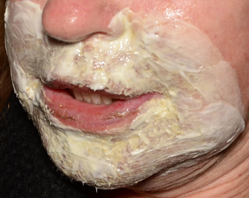 """Pav. 9 Lokalus """"lūpos-smakras"""", gilusis cheminis pilingas fenoliu. Miltelinės kaukės nuėmimas aštuntą parą: procedūros palengvinimui, miltelinė kaukė gausiai užtepama emolientais ir nuvaloma po 4-6 val."""